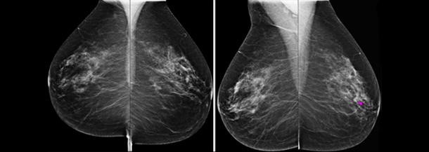 Xray image of breast